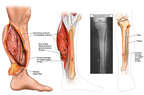 Crush Injuries of Left Lower Leg