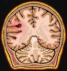 Brain with Cerebral Trauma (MRI), Cut-away View
