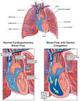 Pulmonary Edema (Lung Congestion)