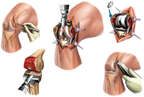 Proposed Total Right Knee Replacement Procedure
