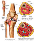 Tibial Plateau Fracture and Compartment Syndrome