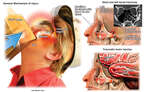 Mechanism of Facial and Brain Injuries