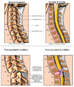 Spinal Cord Injury - Cervical Subluxation (Neck Vertebrae Overlap) and Bilateral Facet Lock
