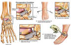Ankle Debridement