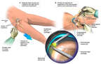 Hip Arthroscopy Procedure