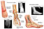 Right Foot Injuries with Surgical Repairs