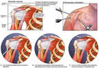 Torn Rotator Cuff and Arthroscopic Surgical Repairs on Right Shoulder