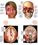Female Face with Blunt Trauma, Multiple Facial Fractures and Brain Injuries