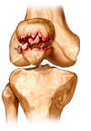 Fractured Patellar Bone (Knee Cap)