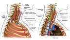 Anatomy of the Upper Chest Cavity-Right lateral view