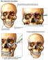 Multiple Skull- Facial Fractures and Surgical Repairs