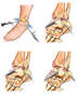Left Ankle Injuries with Arthroscopic Repairs