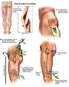 Left Femoral Fracture and Surgical Fixation