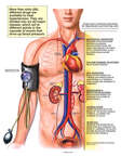 Treatments for Hypertension (High Blood Pressure)