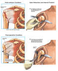 Right Shoulder Fracture with Surgical Fixation