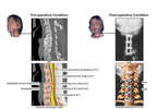 Female Portraits with Multilevel Cervical Injuries and Post-operative Condition