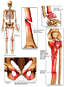 Skeletal Figure with Post-accident Fractures to the Thigh, Wrist, Pelvis and Lower Leg-Knee