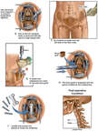 Cervical Corpectomy and Fusion