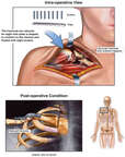 Clavicular Fixation