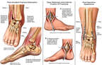 Post-Accident Fracture-Dislocation of the Ankle