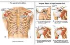 Surgical Repair of the Right Rotator Cuff