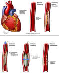 Coronary Artery Stenosis with Angioplasty