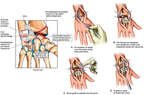 Right Wrist Fusion Surgery