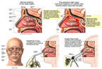 Surgical Endoscopic Debridement of Sinusitis