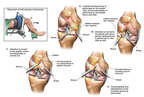 Arthroscopic Repairs of the Knee