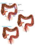 Mechanism of Colon Perforation