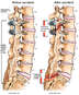 Fracture of Previous Lumbo-sacral Spine Fusion