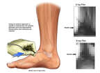 Ankle Arthrograms