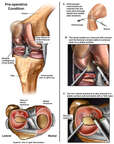 Knee Surgery - Repair of Torn Lateral Meniscus