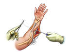 Internal Fixation within Forearm
