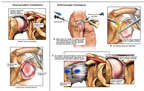 Recurrent Shoulder Dislocation with Arthroscopic Repairs