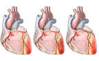 Coronary Bypass Procedure