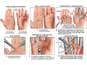 Right Hand Injury with Multiple Surgical Repairs