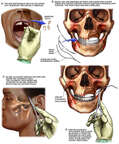 Surgical Fixation of Maxillary and Mandibular Fractures