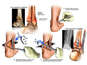 Right Ankle Injuries with Surgical Fixation