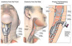Anatomy of the Trachea with Proper Tracheostomy Placement