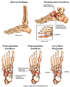 Progression of Left Foot Injury