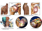 Right Shoulder Injuries with Initial Arthroscopic Repair
