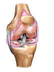Knee Joint Injuries