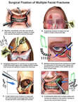 Surgical Fixation of Multiple Facial Fractures