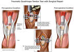 Traumatic Quadriceps Tear with Surgical Repair