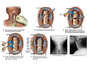 C3-4, C4-5 and C5-6 Anterior Cervical Discectomy and Fusion with Instrumentation