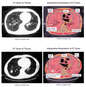 Progression of Lung Cancer