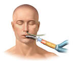 NG Tube and Endotracheal Intubation