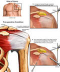 Arthroscopic Repair of Shoulder Injury
