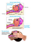 The Mechanism of Apnea